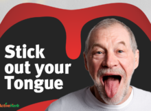 tongue diagnosis tcm