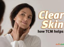TCM for pimples
